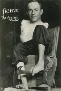 image promotionnelle d'homme sans bras